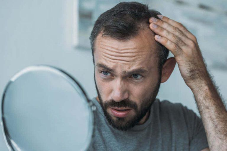 edad de la alopecia