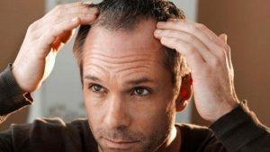 nuevos avances contra la alopecia