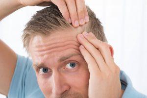 consecuencias psicológicas de la alopecia